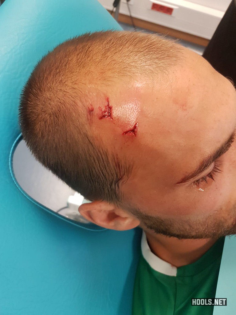 Sporting striker Bas Dost suffered a head wound in the attack